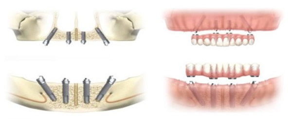 The difference between single dental implants and all-on-4® with dental implants