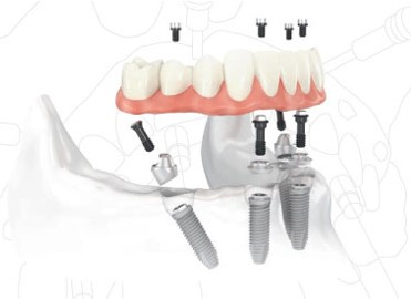Why nobel biocare dental implants and next smile™ all-on-4® centre go hand in hand