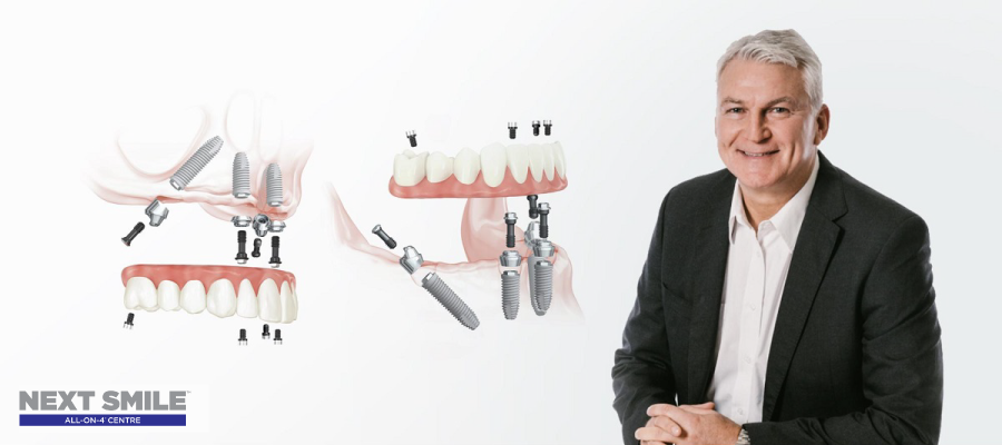 Malo education and the next smile™  commitment to quality all-on- 4® treatments