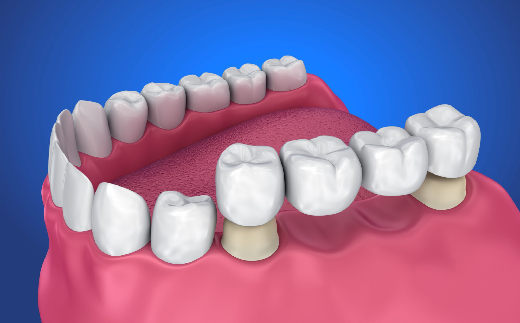 Dental bridge replacement: when and why is it necessary?